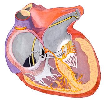 Vad är ablation? Hjärta i genomskärning.